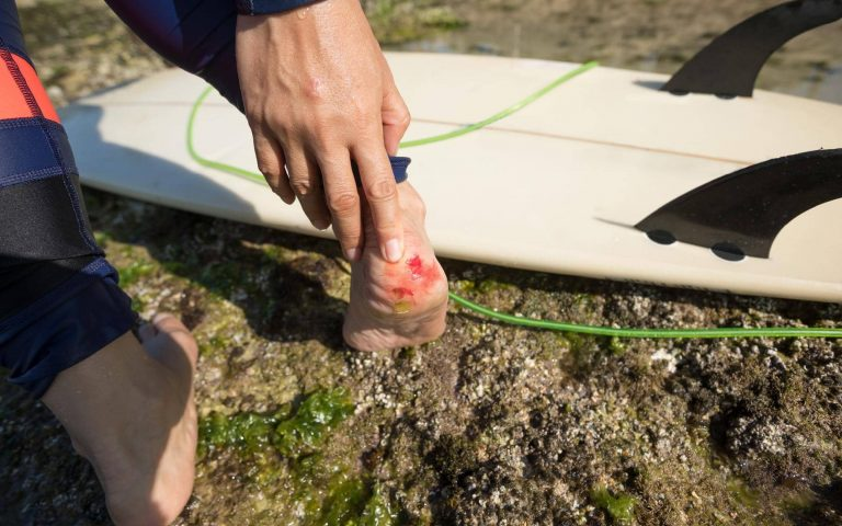 What Are The Dangers Of Surfing?